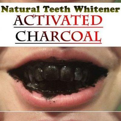 4831d7233cc648b0df28db2e50be1eec natural teeth whitening charcoal powder teeth 400x400 - Pro Teeth Whitening & Co Activated Charcoal Teeth Whitening Powder