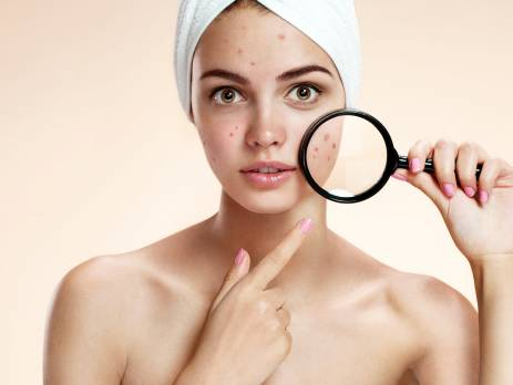 acne2 463x348 - ALL YOU NEED TO KNOW TO HAVE CLEARER SKIN THIS MONSOON